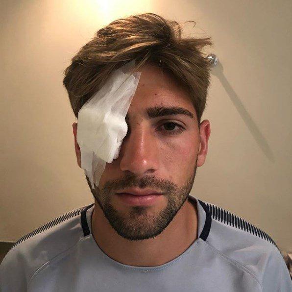 Gonzalo Lamaro was also cut in one eye